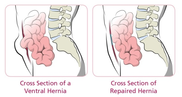 cross section ventral hernia and repaired hernia
