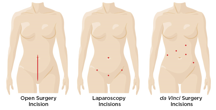 hysterectomy incision comparison